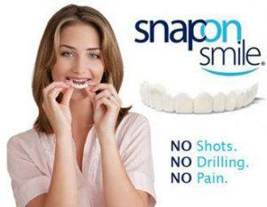 Snap on Smile - DT534